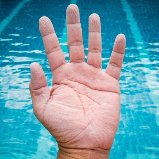 Почему после погружения в воду на коже появляются морщины?